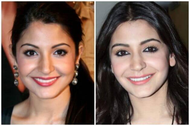 Anushka Sharma Surgery
