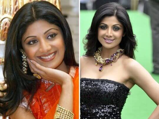 Shilpa Shetty Surgery